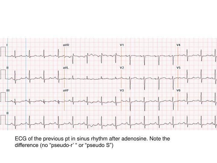 """ECG of the previous pt in sinus rhythm after adenosine. Note the difference (no """"pseudo-r' """" or """"pseudo S"""")"""