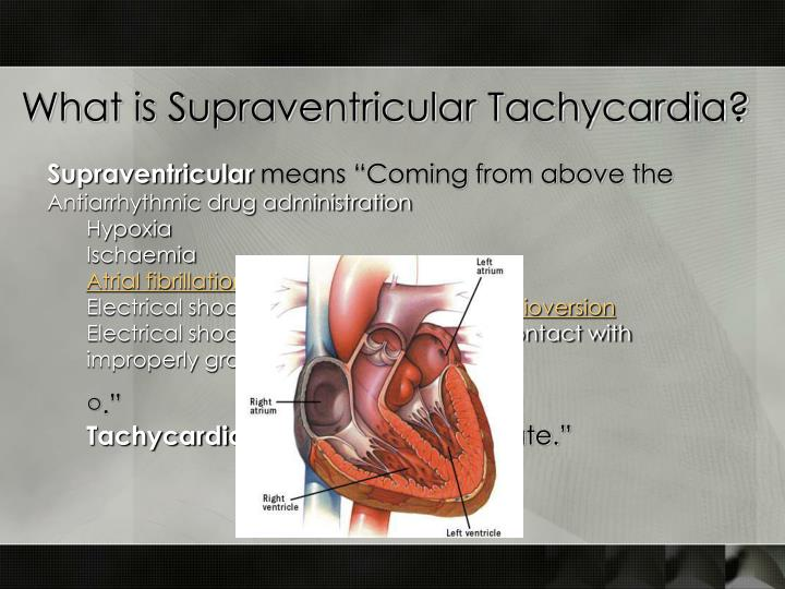 What is Supraventricular Tachycardia?