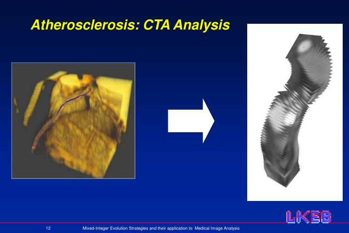 Atherosclerosis: CTA Analysis