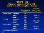 patient 1115 apparent loss of 50 hip bmd due to scan of unacceptable quality