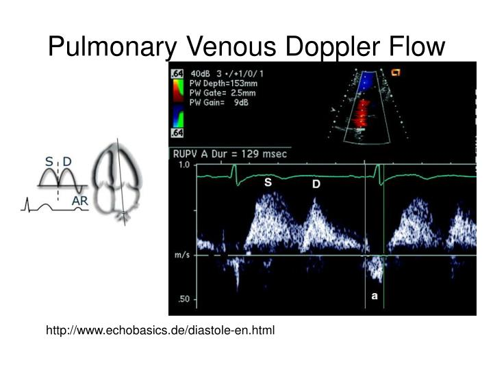 Pulmonary Venous Doppler Flow