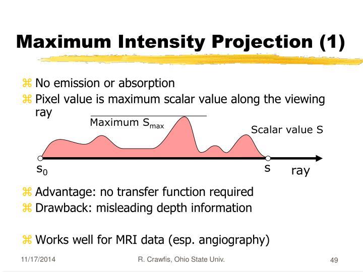 Maximum Intensity Projection (1)