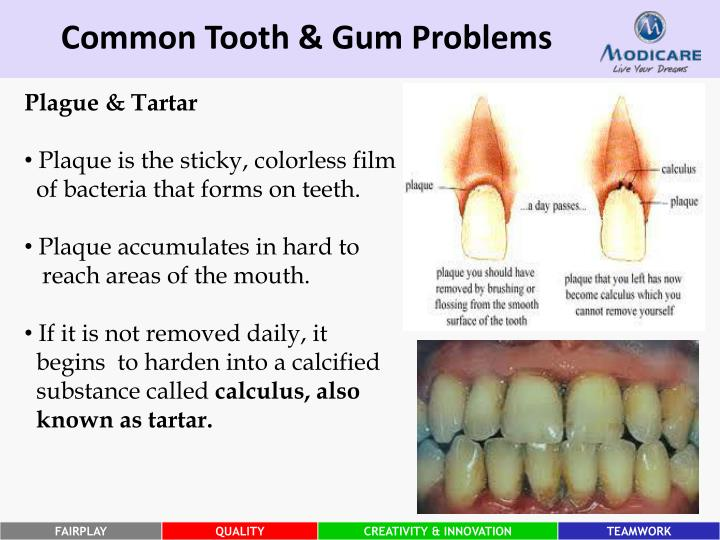 Common Tooth & Gum Problems