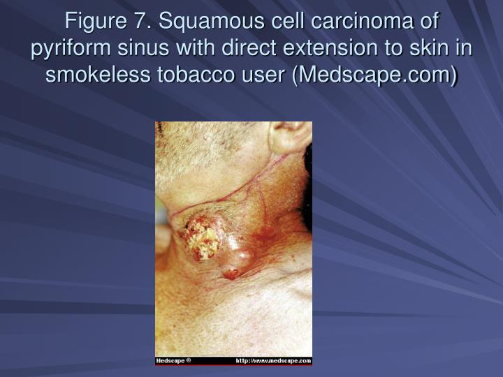 Figure 7. Squamous cell carcinoma of pyriform sinus with direct extension to skin in smokeless tobacco user (Medscape.com)