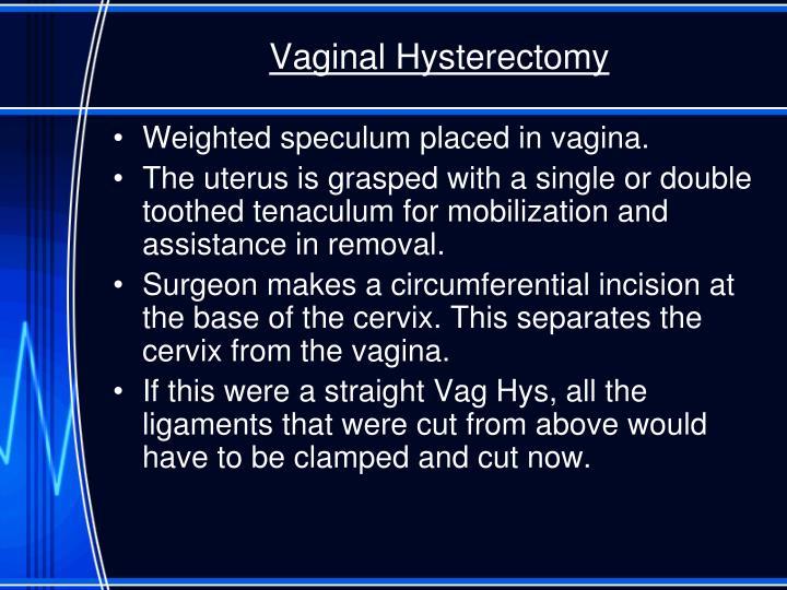 Vaginal Hysterectomy