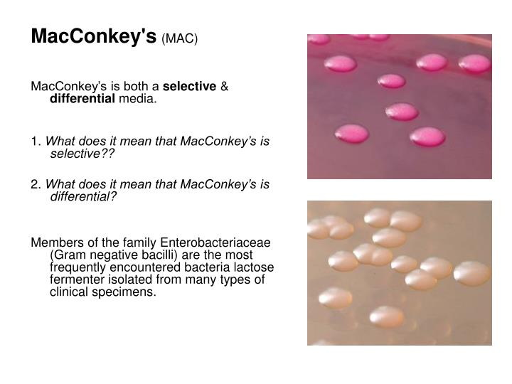 MacConkey's
