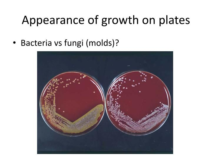 Appearance of growth on plates