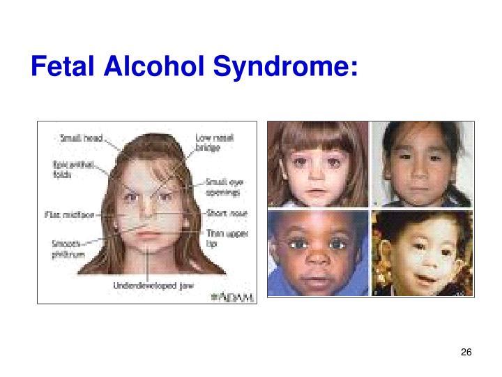 Fetal Alcohol Syndrome: