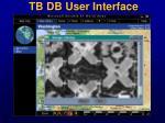 tb db user interface