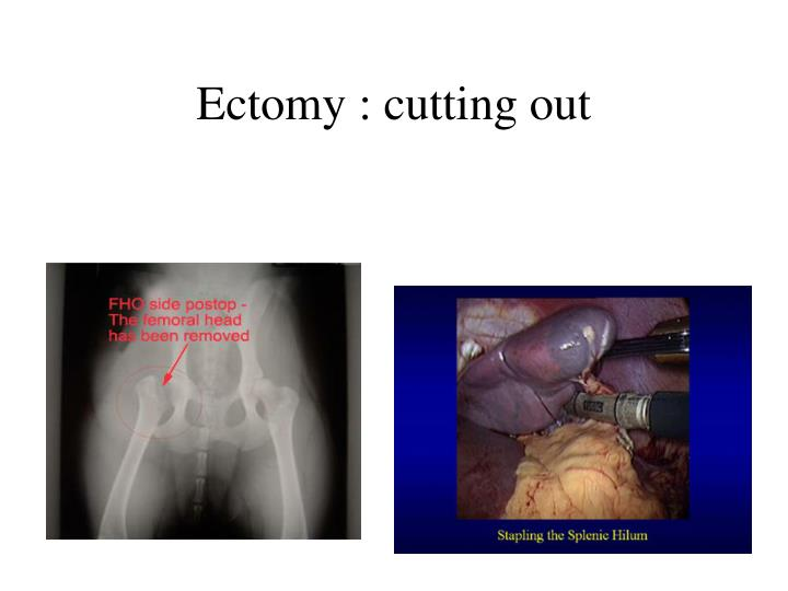 Ectomy : cutting out