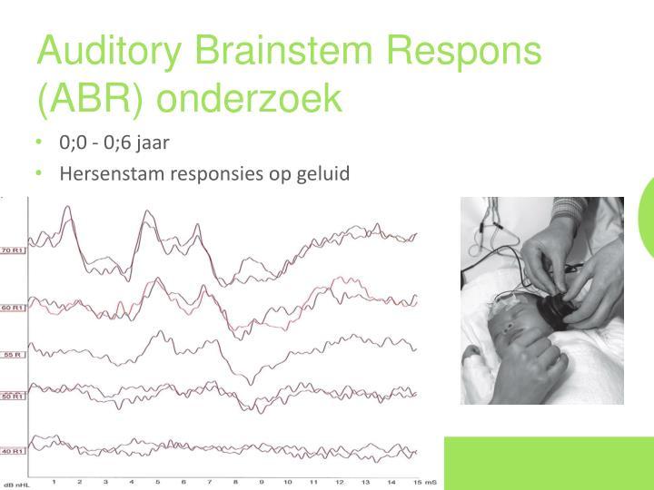 Auditory Brainstem Respons (ABR) onderzoek