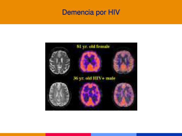 Demencia por HIV