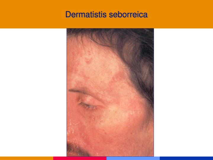 Dermatistis seborreica