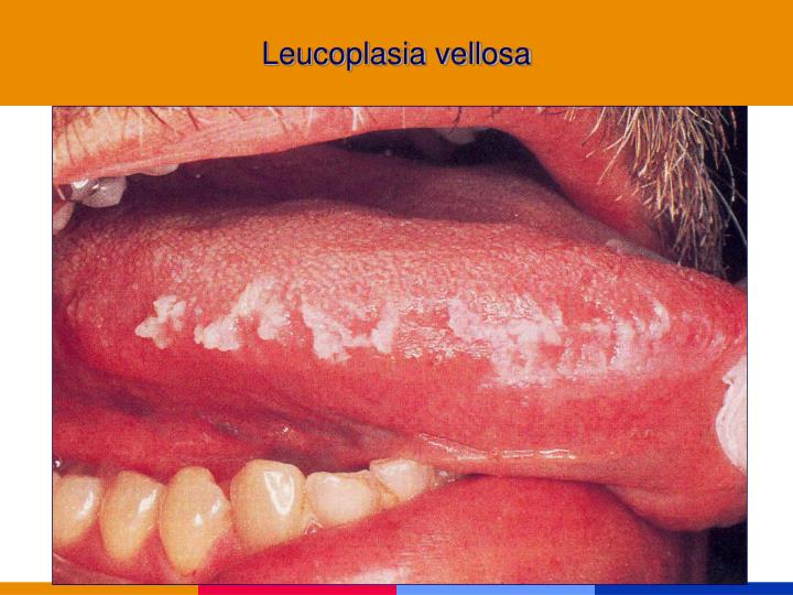 Leucoplasia vellosa