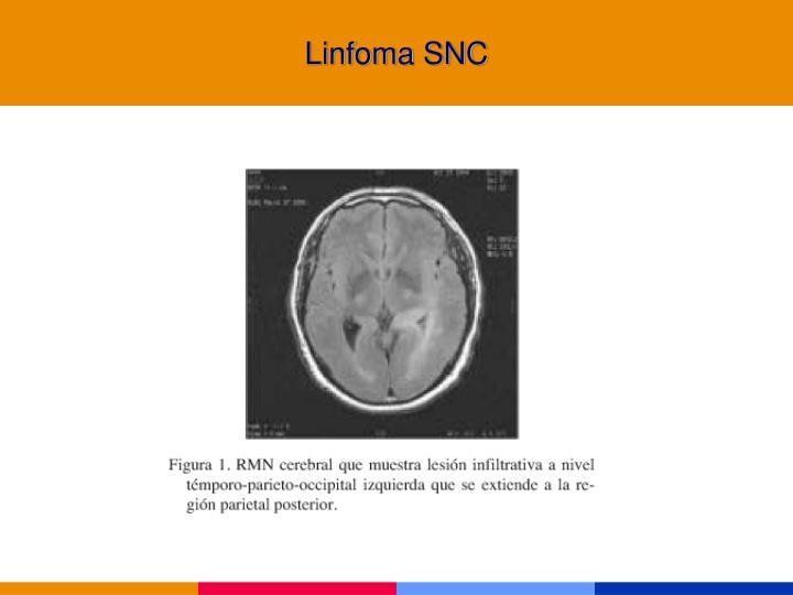 Linfoma SNC
