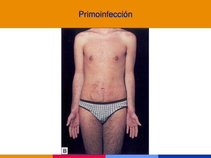 Primoinfección