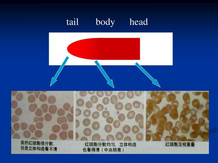 tail       body      head