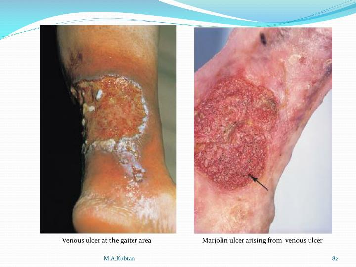Venous ulcer at the gaiter area