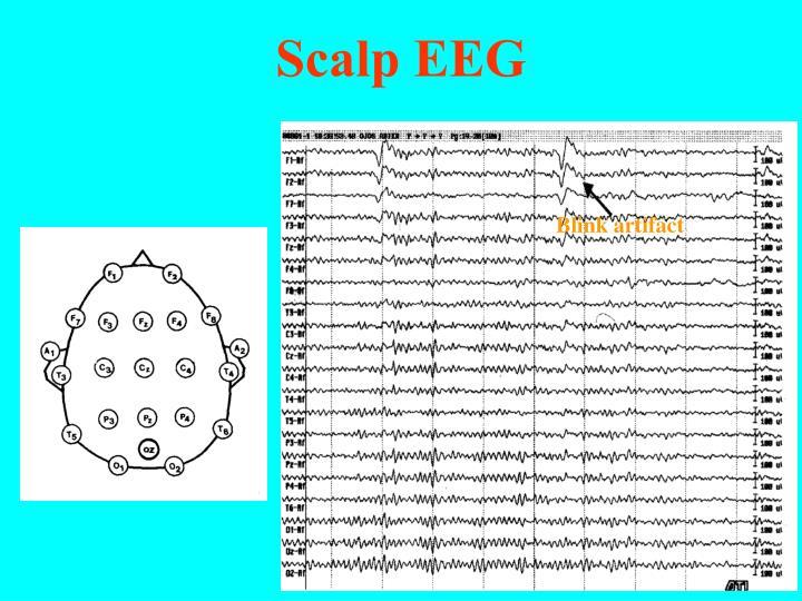 Scalp EEG