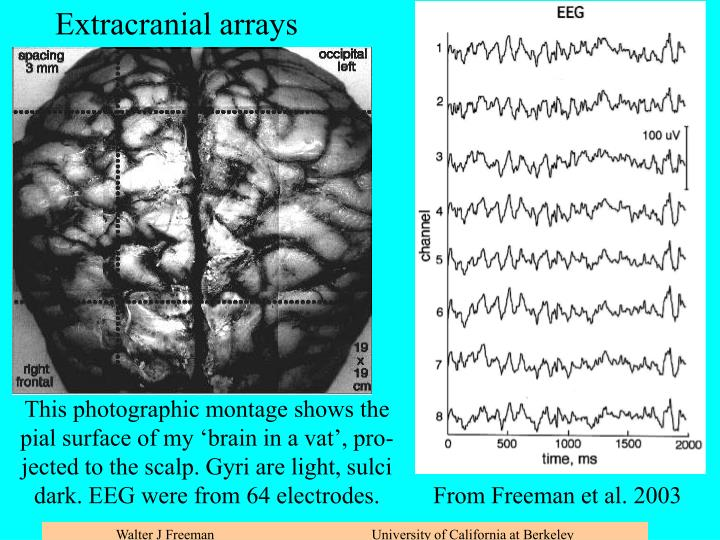 Scalp recording with high density linear array