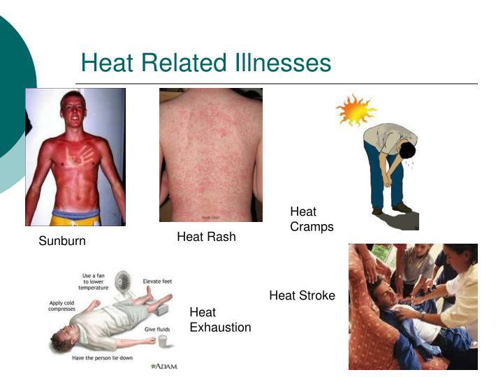 Heat Related Illnesses