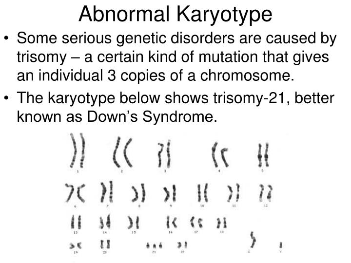 Abnormal Karyotype