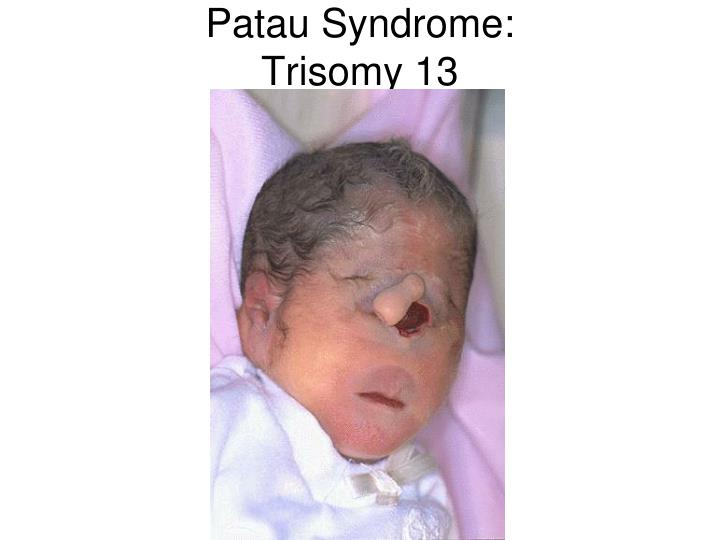 Patau Syndrome: