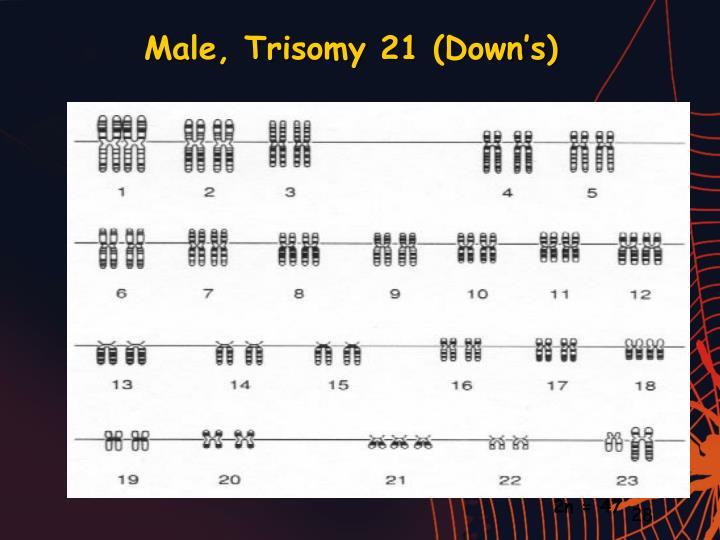 Male, Trisomy 21 (Down's)