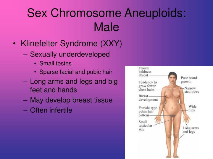 Sex Chromosome Aneuploids: Male