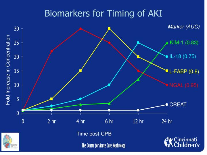 Biomarkers for Timing of AKI