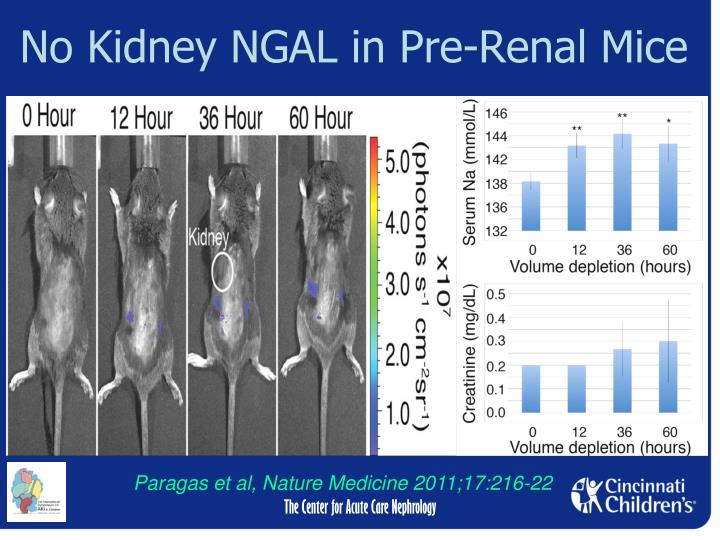 No Kidney NGAL in Pre-Renal Mice