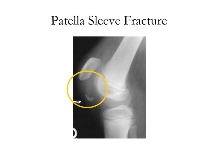 Patella Sleeve Fracture