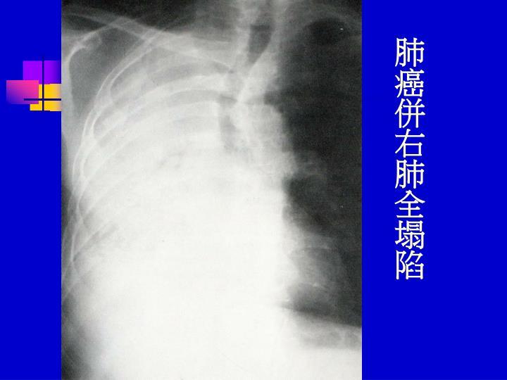 肺癌併右肺全塌陷