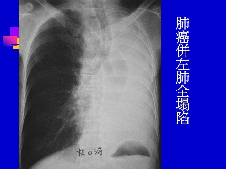 肺癌併左肺全塌陷