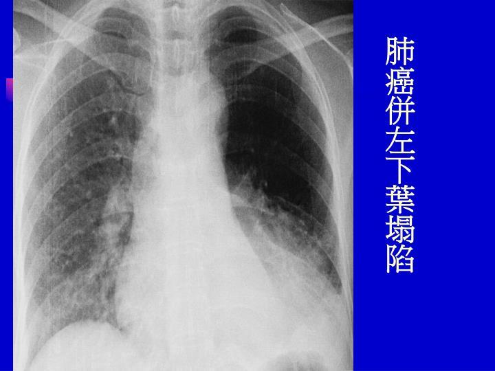 肺癌併左下葉塌陷