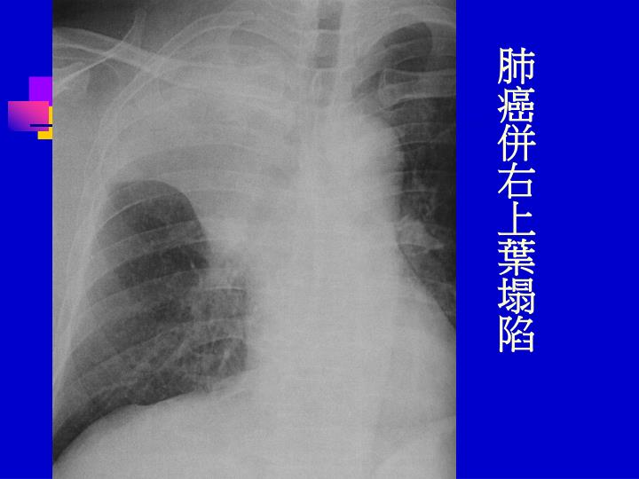 肺癌併右上葉塌陷