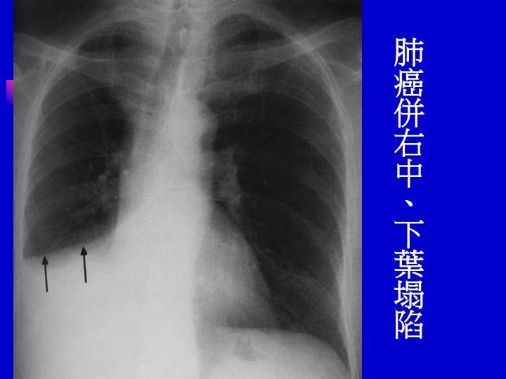 肺癌併右中、下葉塌陷