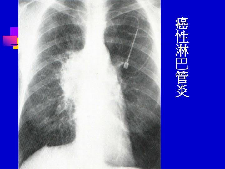 癌性淋巴管炎