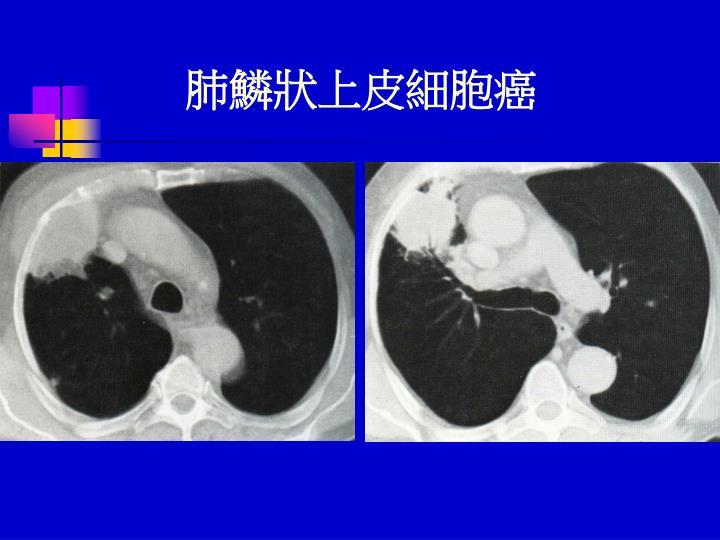 肺鱗狀上皮細胞癌