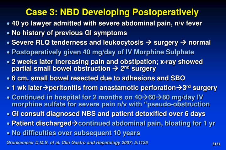 Case 3: NBD Developing Postoperatively