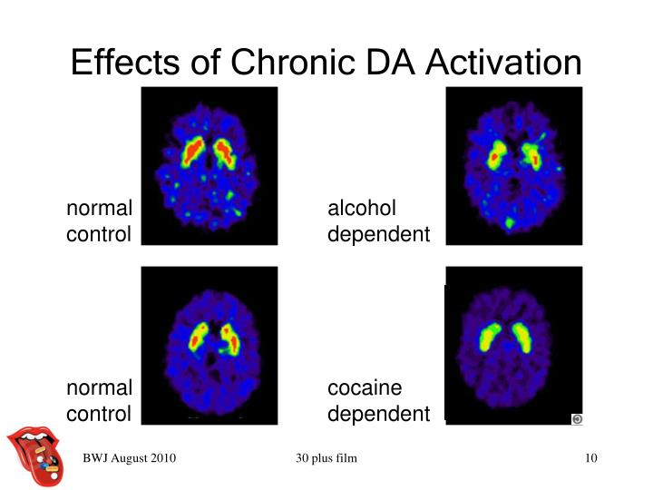 Effects of Chronic DA Activation