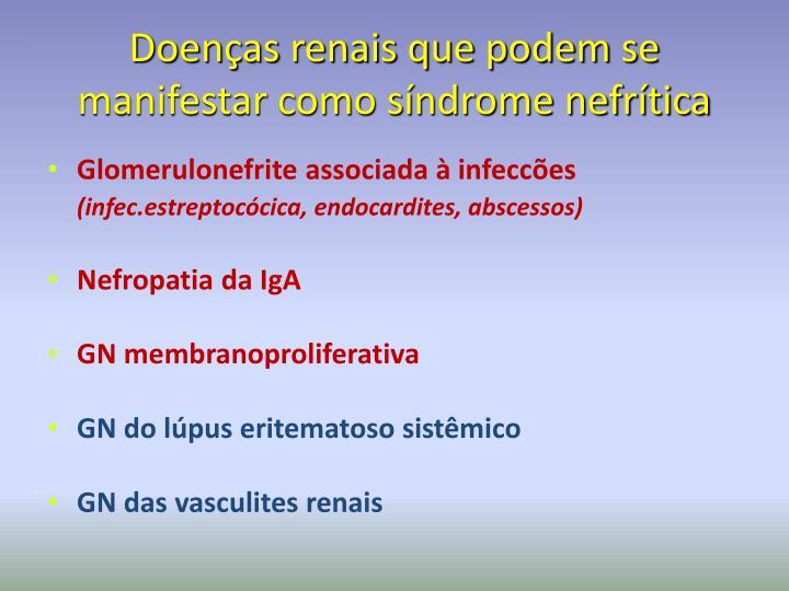 Doenças renais que podem se manifestar como síndrome nefrítica
