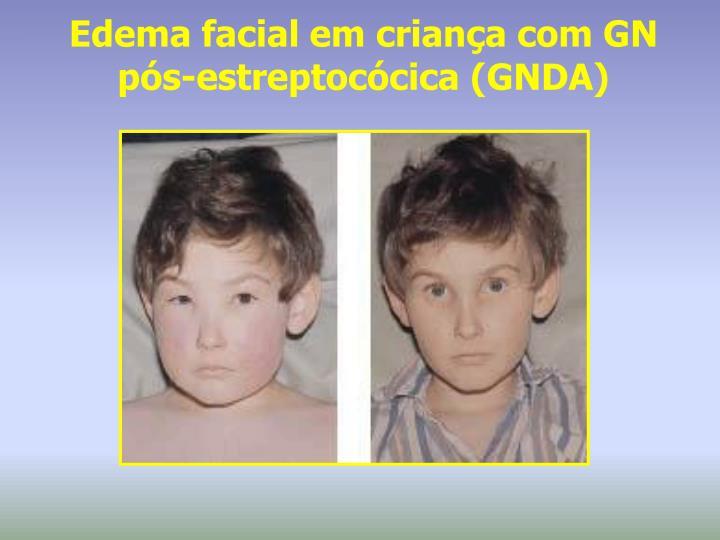 Edema facial em criança com GN pós-estreptocócica (GNDA)