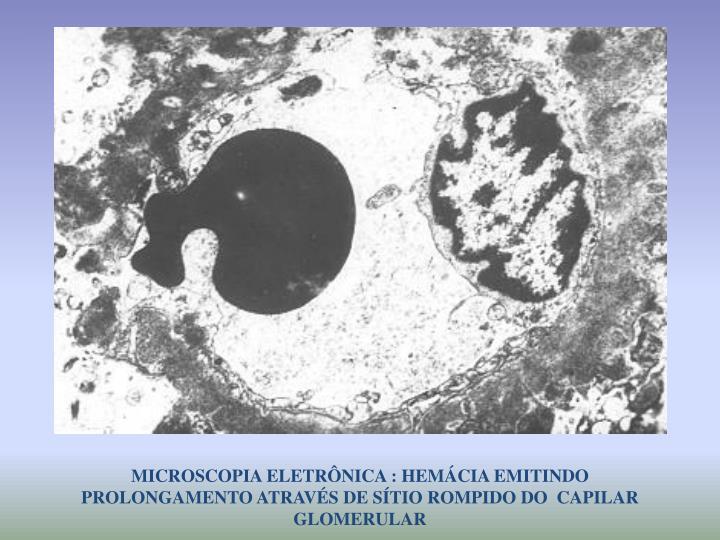 MICROSCOPIA ELETRÔNICA : HEMÁCIA EMITINDO PROLONGAMENTO ATRAVÉS DE SÍTIO ROMPIDO DO  CAPILAR GLOMERULAR