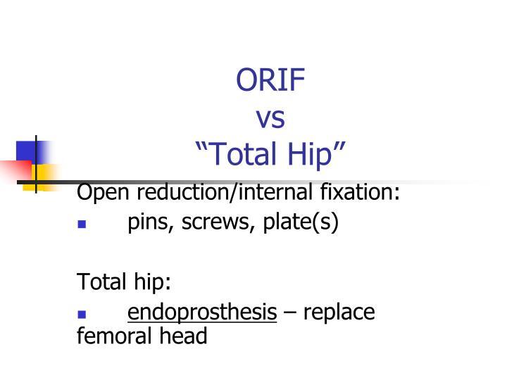 Open reduction/internal fixation:
