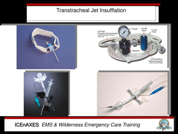 Transtracheal Jet Insufflation