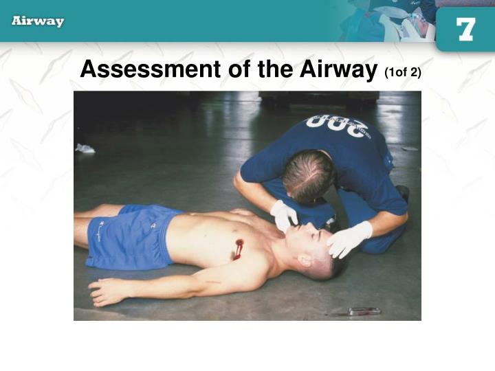Assessment of the Airway