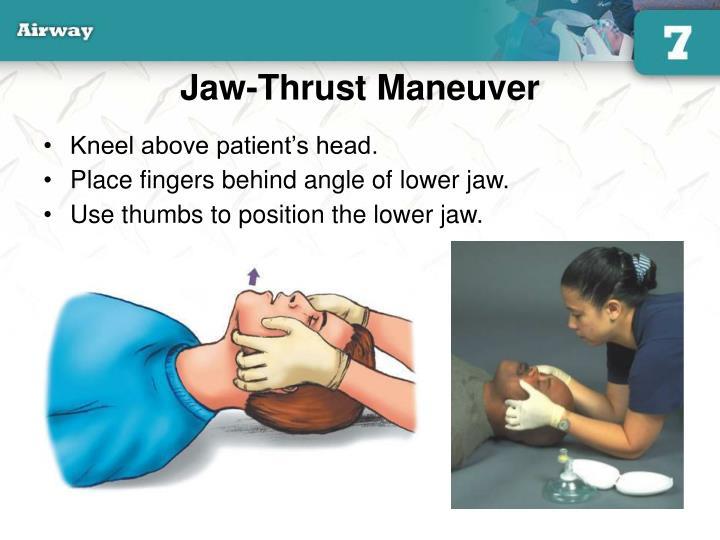 Jaw-Thrust Maneuver