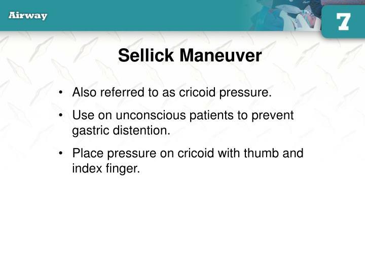 Sellick Maneuver