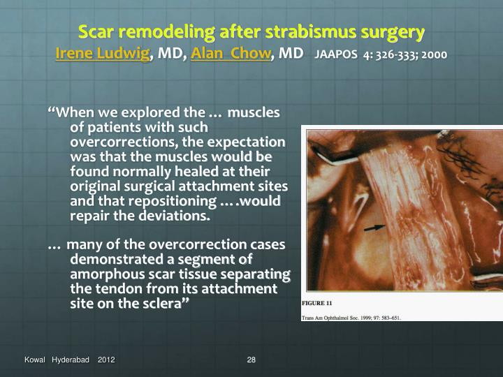 Scar remodeling after strabismus surgery
